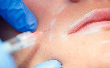 Tratamiento para arrugas, migrañas, parálisis facial, bruxismo, sonrisa gingival y sudoración excesiva.